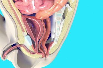 malformaciones anorectales - cirujano pediatra en cancun